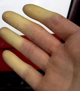 Raynaud's Phenomenon - white fingers on hand