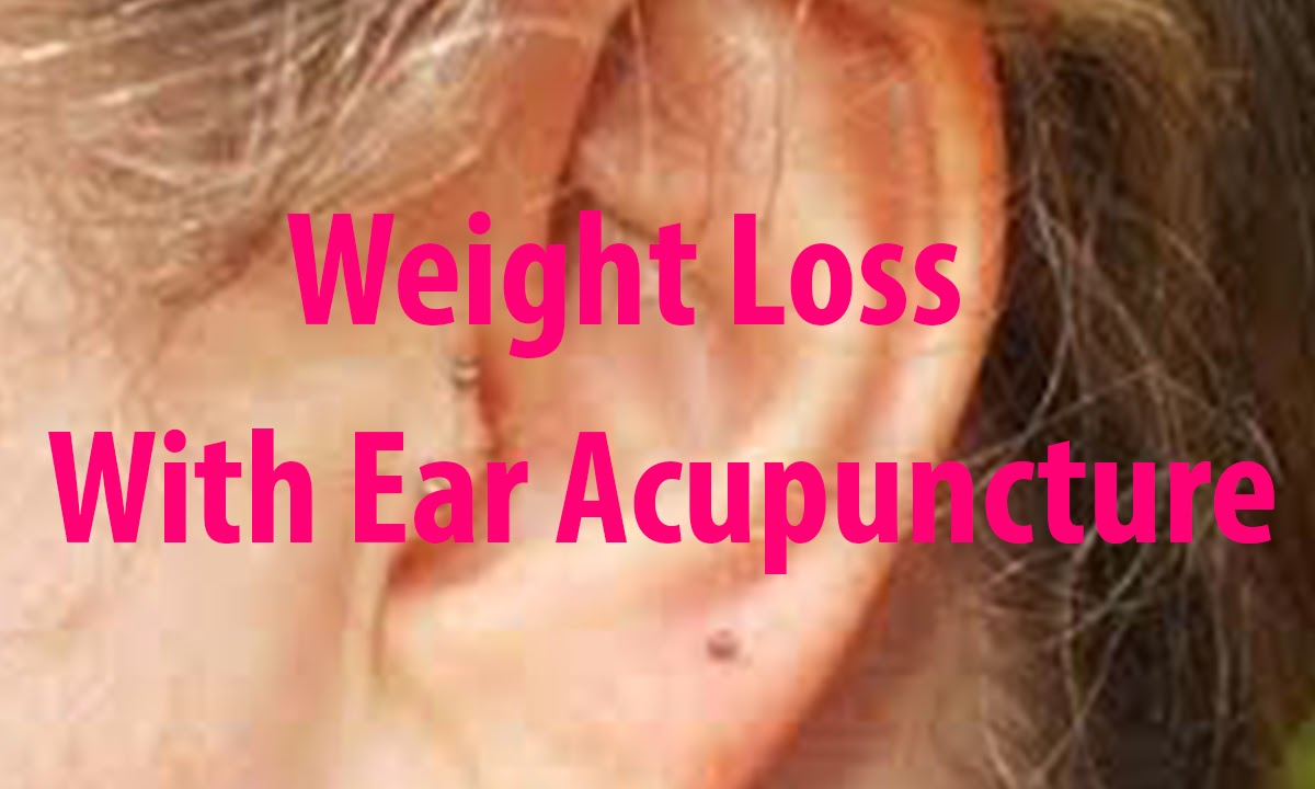 Weight Loss With Ear Acupuncture