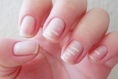 Los tratamientos del hongo de las uñas por la lámpara de cuarzo