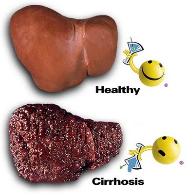 Prevalence alcoholic liver varies from country to country depending