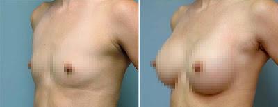 göğüs büyütme ameliyatı fiyatları 2014, meme büyütme ameliyatı fiyatı