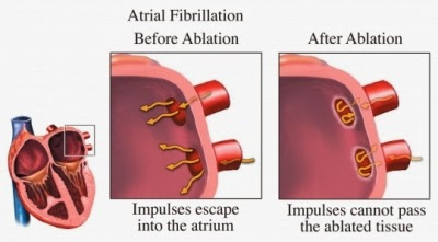 Atrial fibrillation is often caused by abnormal electrical activity coming from the pulmonary veins. Afib ablation is a procedure used to block these impulses by ablating either with heat or cold energy. After ablation the abnormal electrical impulses can't go into the heart and cause afib.
