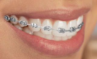 Photos Different Types Orthodontic Braces http://metal-braces-cost.blogspot.com/2012/06/types-of-braces-for-teeth.html