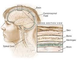 penyakit radang selaput otak