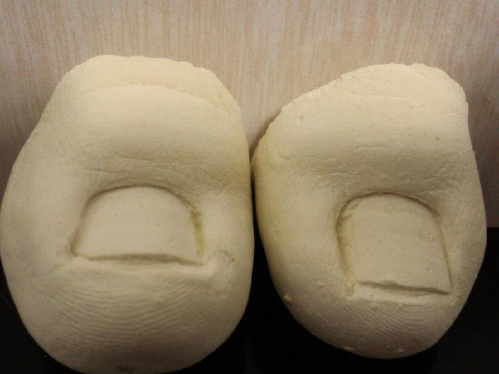 Podologia saúde ao seus pés Aplicaç u00e3o deórtese na lamina ungueal (unha)