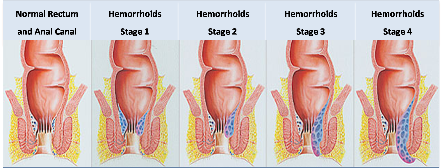 Hemorrhoids Doctor: What Is A Hemorrhoid? Defining Hemorrhoids