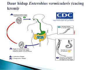 Siklus Hidup Enterobius vermicularis ( cacing kremi )