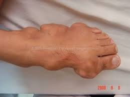 herbal medicine for lowering uric acid does high uric acid cause weight gain gout symptoms big toe nail