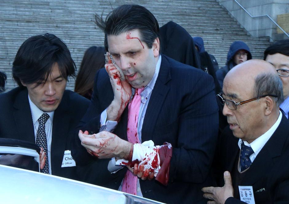 Mark Lippert herido en Corea del Sur