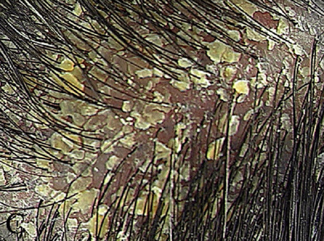 scalp skin condition #10