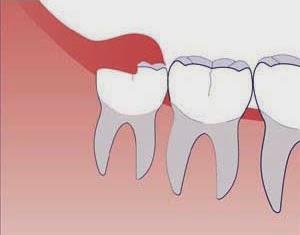 http://www.dentist-india-madurai.com/treatments-wisdom-teeth-removal.html