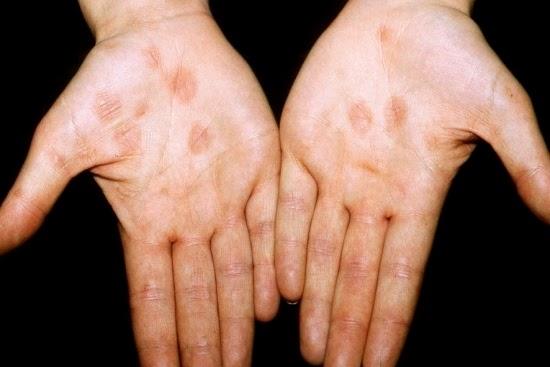 La psoriasis como librarse del picor
