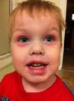 Allergic Shiners Toddler