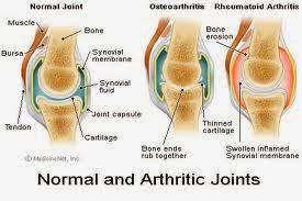 Cara Cepat Menyembuhkan Penyakit Osteoarthritis