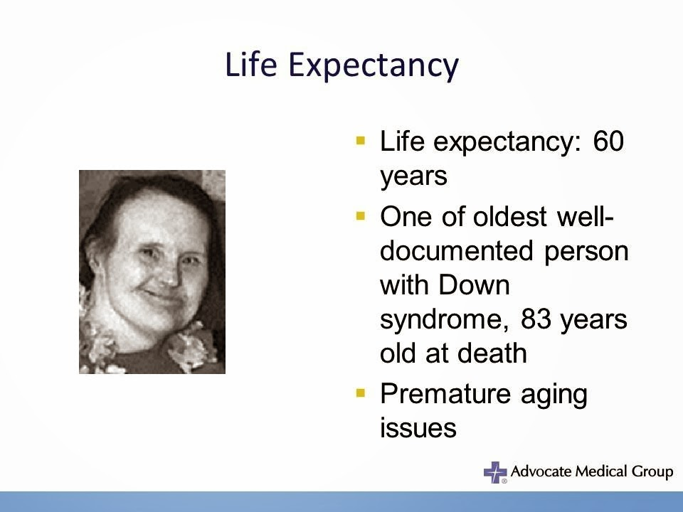 premature syndrome aging Adult