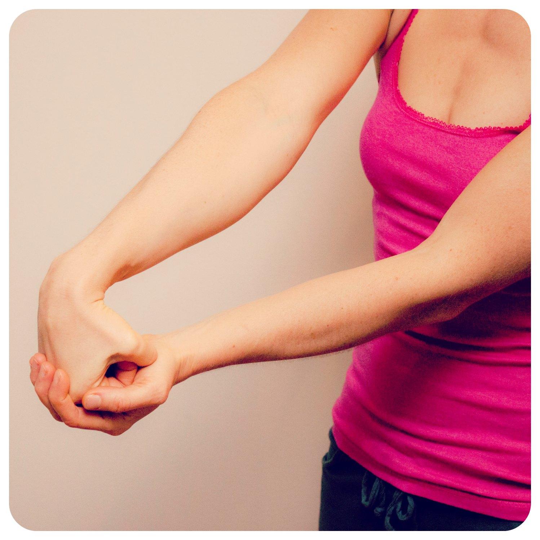 Käden lihasten surkastuminen