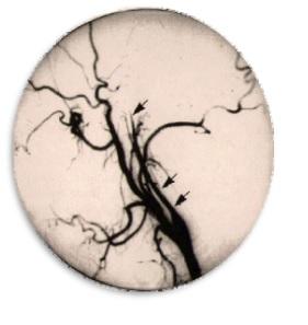 Patología Arterial