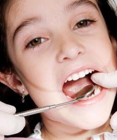 karang gigi pada anak usia sekolah dan bayi, balita