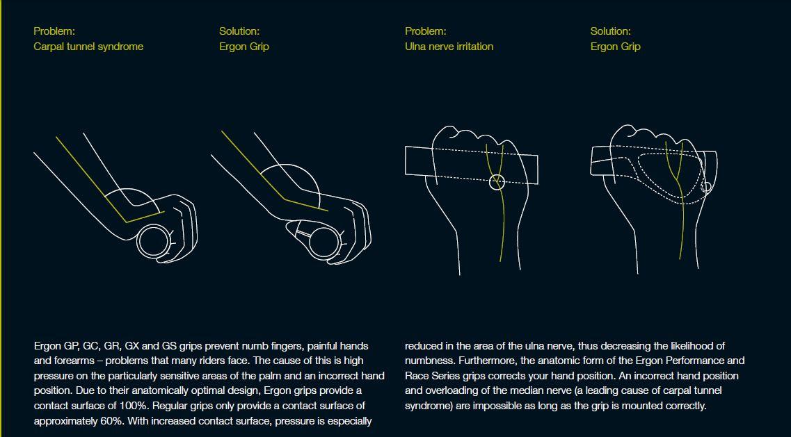 http://3.bp.blogspot.com/-pyApvnVHuFA/Tu0I0y4MioI/AAAAAAAACAg/LioOwredpXY/s1600/ergon+explained.JPG