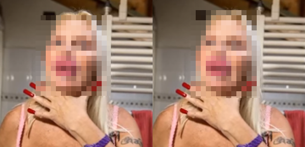 (GAMBAR) Wajah Menakutkan Mak Nyah Selepas Pembedahan Plastik... MENGEJUTKAN!