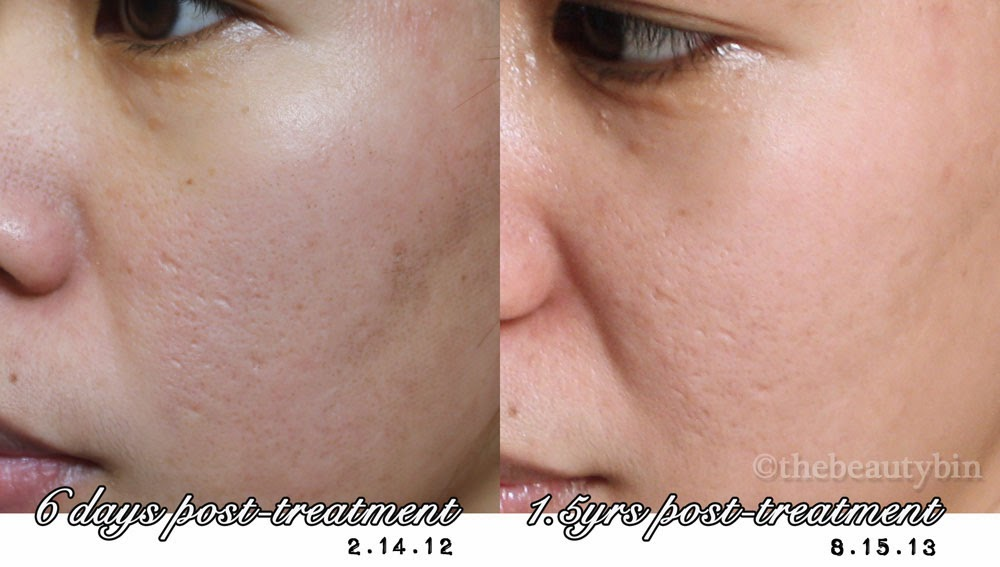 fractional co2 laser downtime