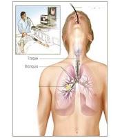 et masuk ke pulmo