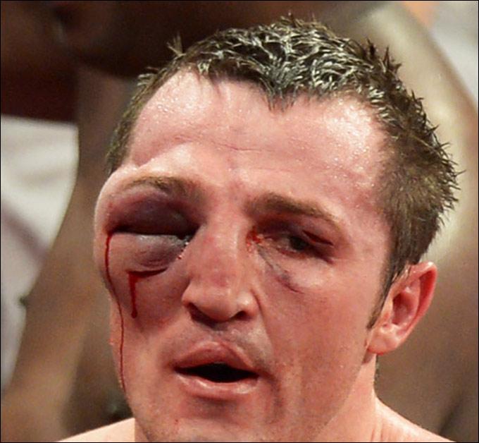 Fotos de boxeadores golpeados