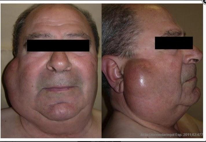 Tumor de warthin   Diagnóstico en patología bucal.