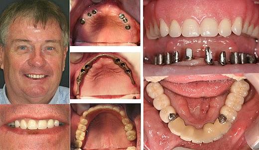 cay-ghep-implant-chi-phi-cay-ghep-implant-cay-ghep-implant-o-dau-tot