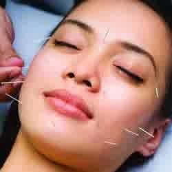 perawatan wajah secara akupuntur