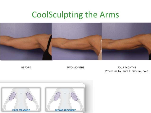 body shape behandling