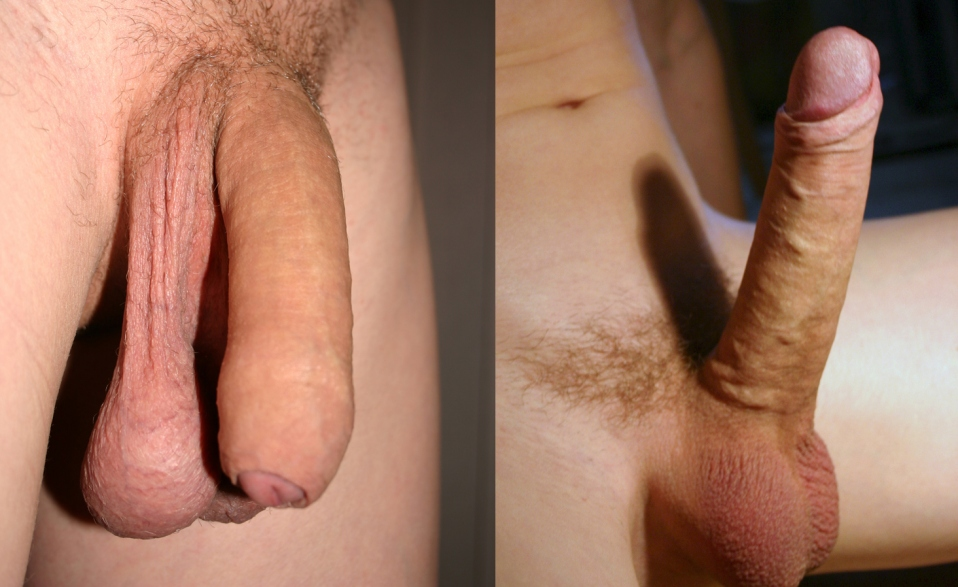 стоит пенис фото