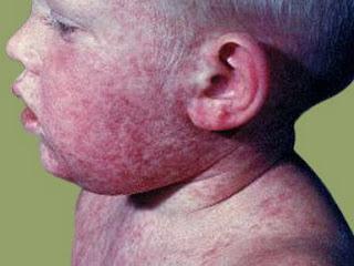 http://www.ramuanalami.co.id/2015/09/cara-menyembuhkan-penyakit-kulit-rubella.html