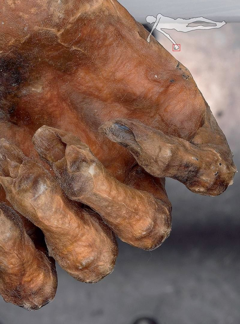 Otzi the ice cave man - اوتزى رجل الثلج انسان الكهف الغابة