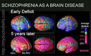 damage to brain in mental illness picture