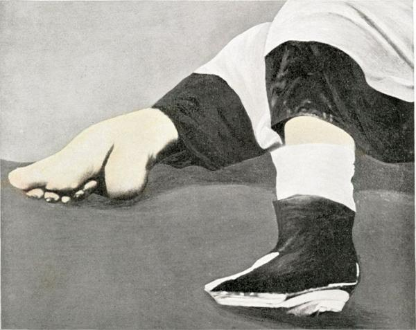 chinese footbinding Foot binding was a custom practiced on young girls and women for approximately one thousand years in china, beginning in the 10th century in chinese society, bound.