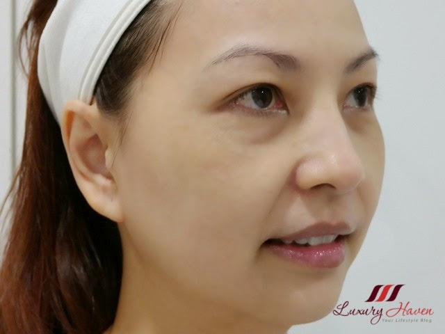 eha clinic aesthetics lutronic mosaic fractional laser review