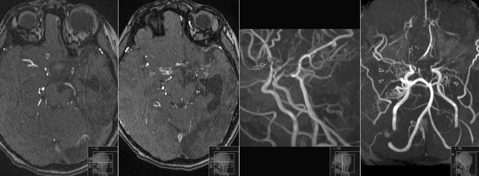 Radiology MRI: July 2011