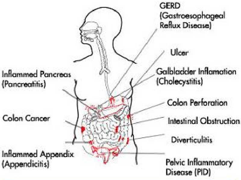 penyebab sakit perut sebelah kiri bagian bawah   informasi