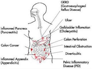 Penyebab sakit Perut sebelah kiri bagian bawah