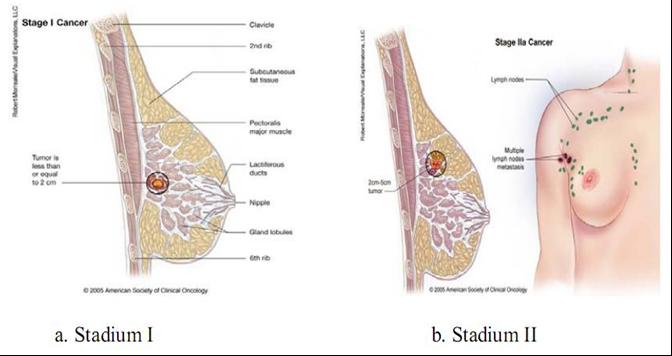 Tumor Payudara Stadium 2