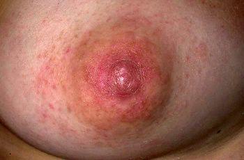 Dermatite di atopic della causa ad adulti