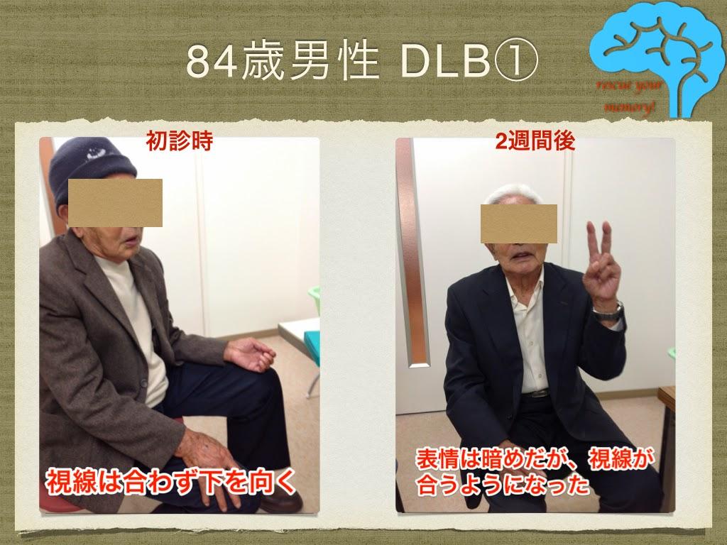 DLB 84歳男性 改善例①