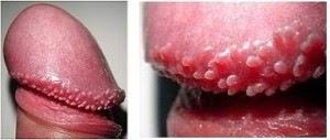 Las pequeñas manchas rojas en la piel del miembro