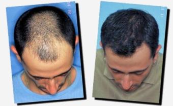 Dai quali capelli a donne dopo 40 abbandonano