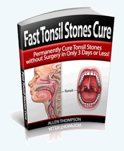 Fast Tonsil Stones Removal