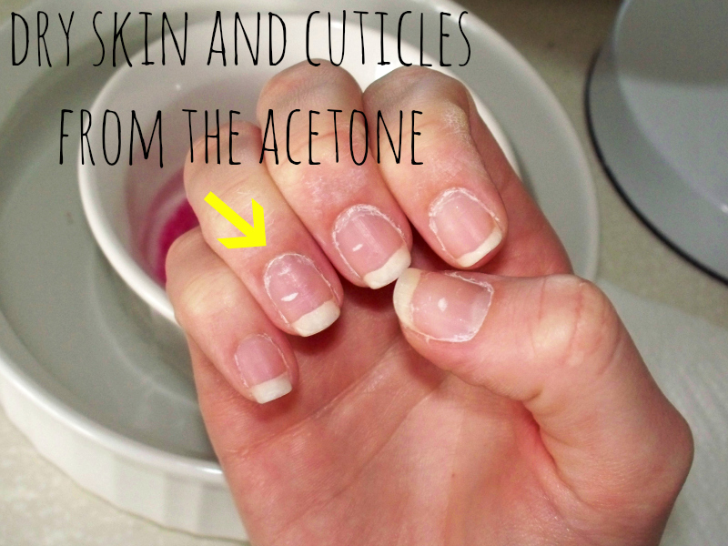 Remove gel nails with rubbing alcohol