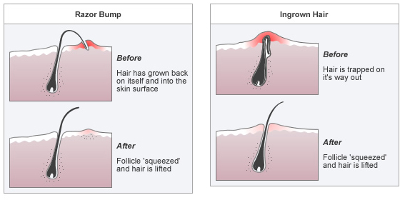 how to make a bump in your hair