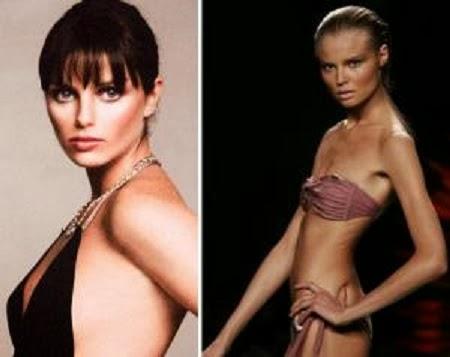 Mujeres Anorexicas, Los Casos mas Sonados