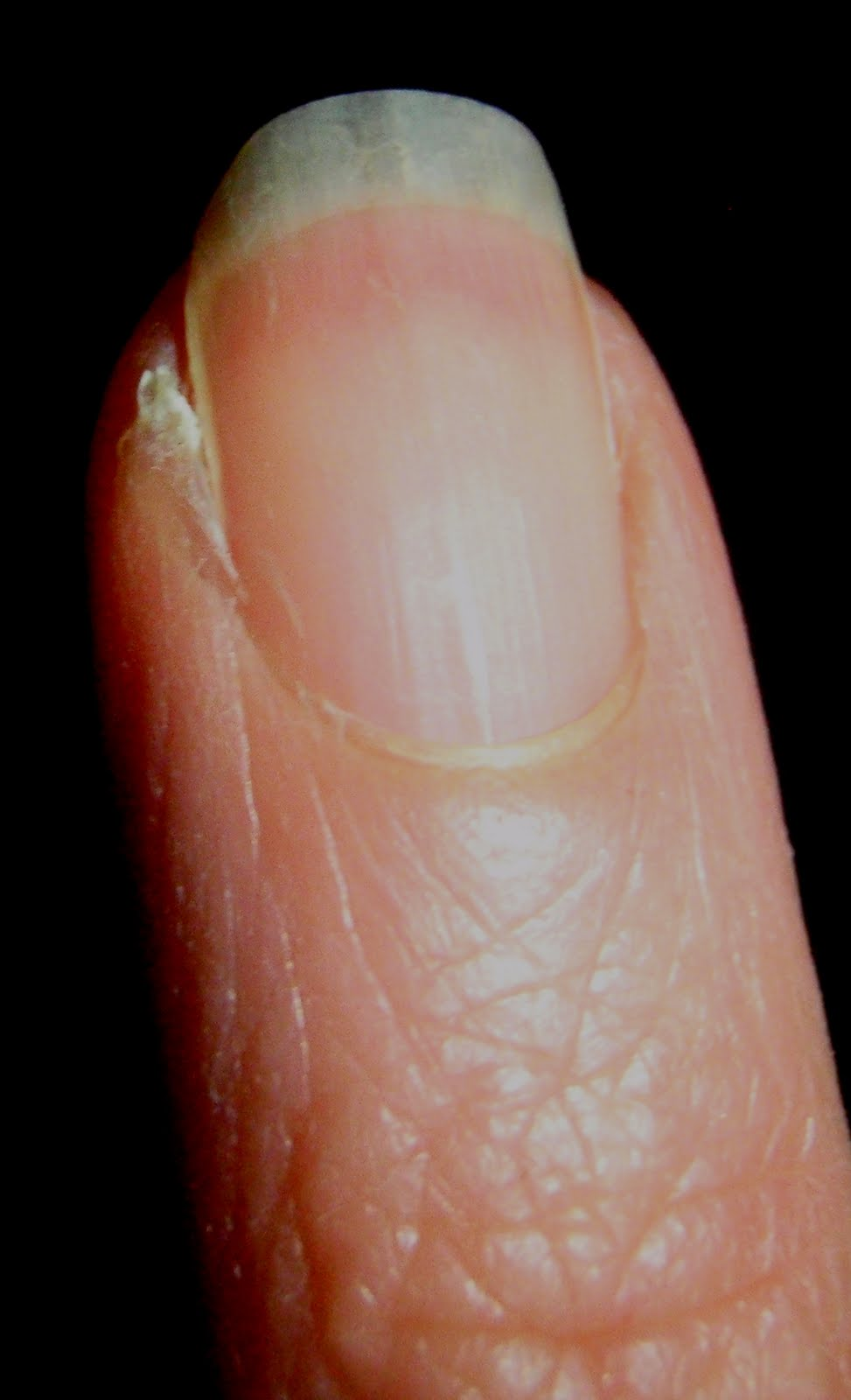 how to draw infection out of hangnail